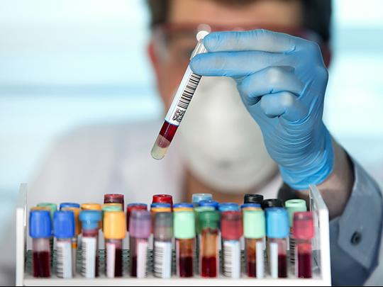 A technician picks up a test tube filled with blood.